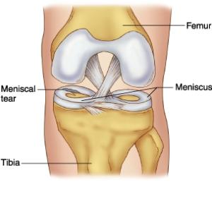 meniscus[1]